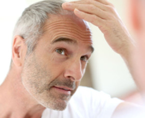 Middle-aged man checks his hair loss